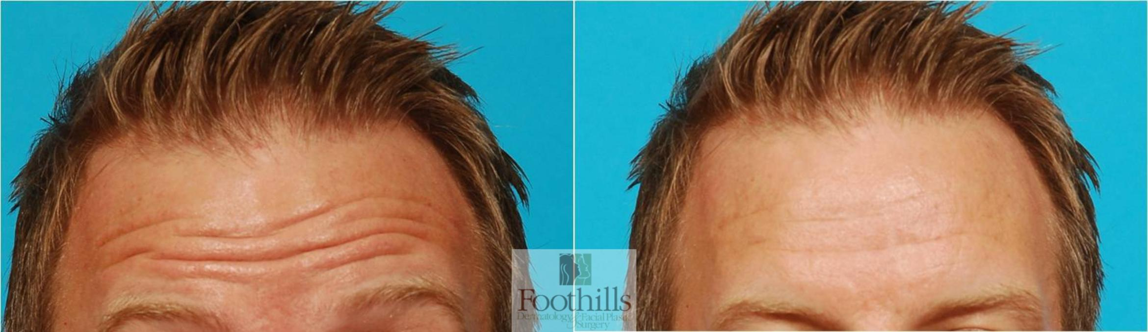 BOTOX® Cosmetic Case 60 Before & After View #1 | Tucson, Az | Foothills Dermatology & Facial Plastic Surgery