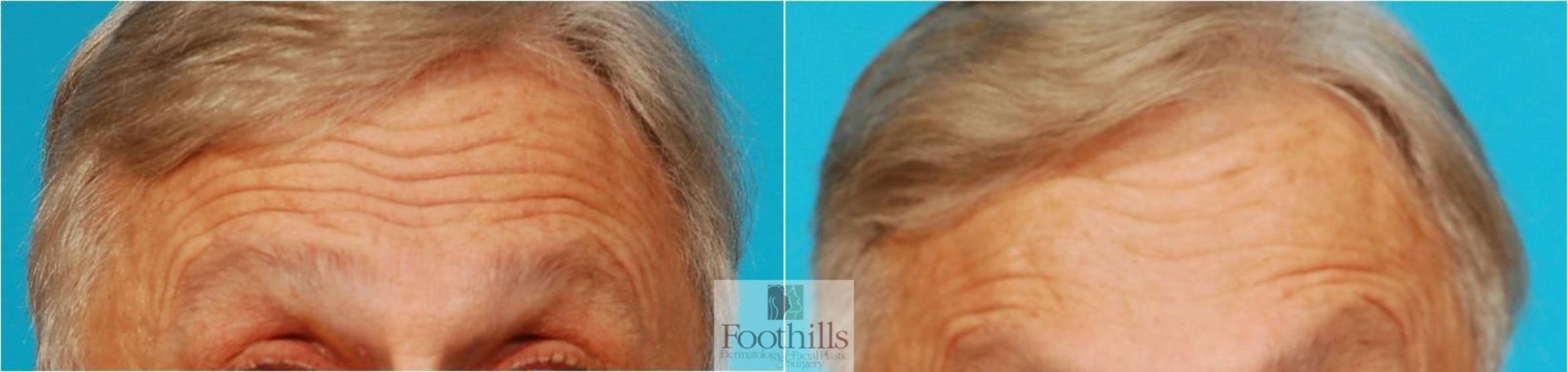 BOTOX® Cosmetic Case 61 Before & After View #1 | Tucson, Az | Foothills Dermatology & Facial Plastic Surgery