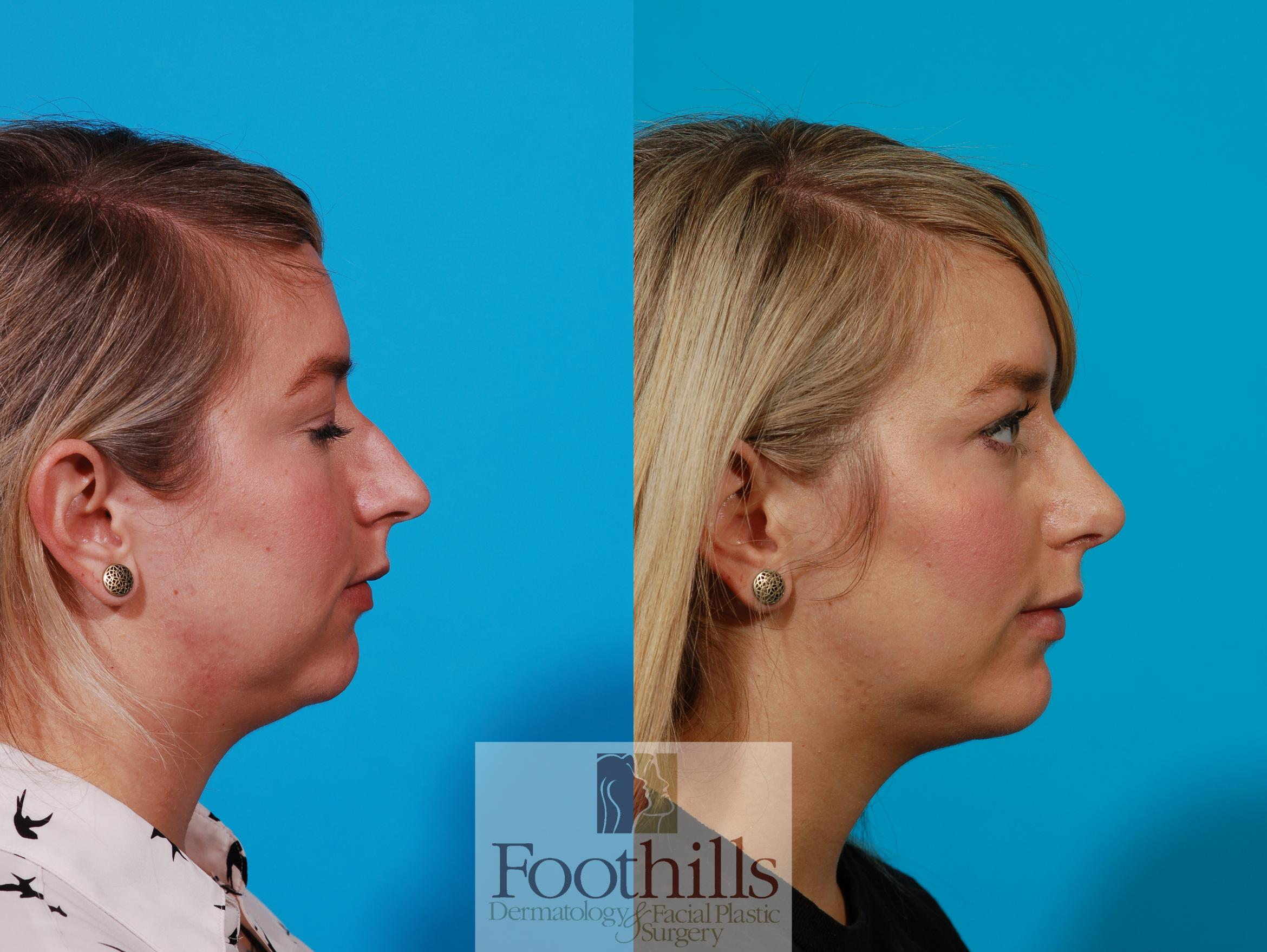 Rhinoplasty Case 102 Before & After View #1 | Tucson, Az | Foothills Dermatology & Facial Plastic Surgery