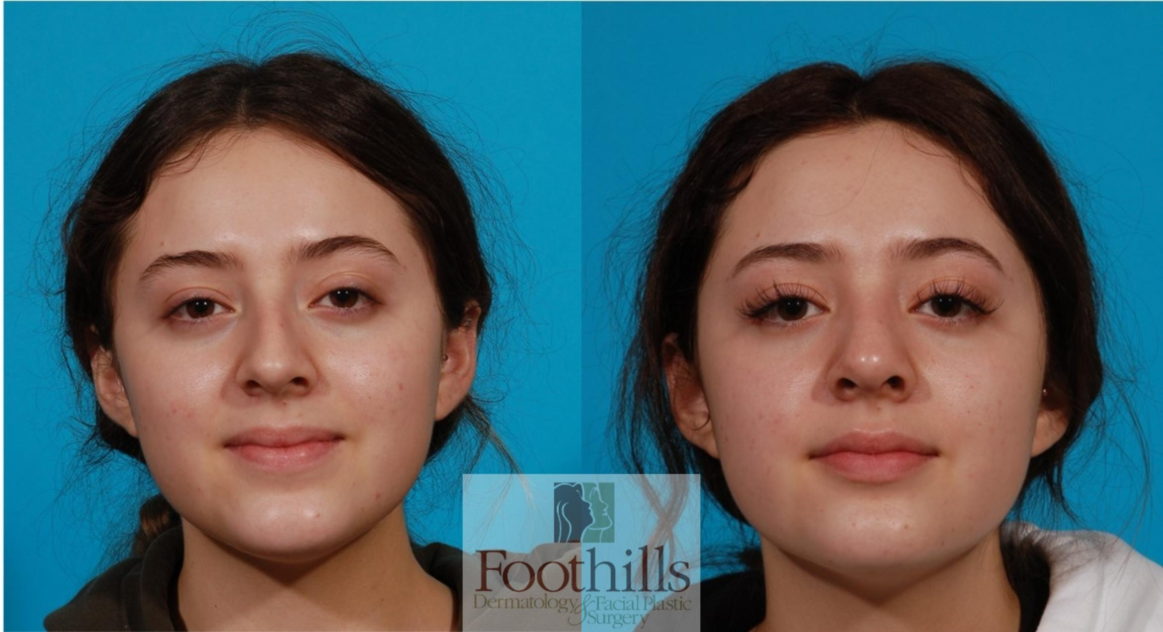 Rhinoplasty Case 142 Before & After Front | Tucson, Az | Foothills Dermatology & Facial Plastic Surgery